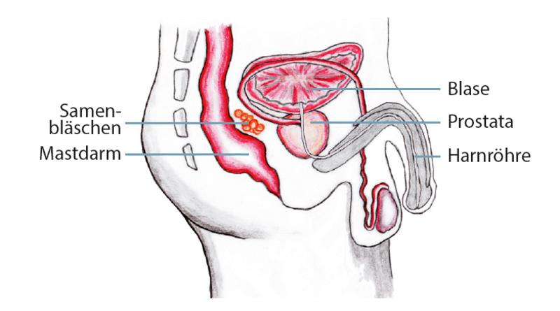 Außen prostata von Bestrahlung bei